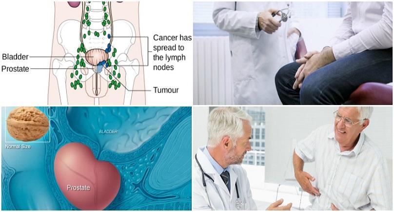 Does Sex Protect Men Against Prostate Cancer  Emtv Online-4408