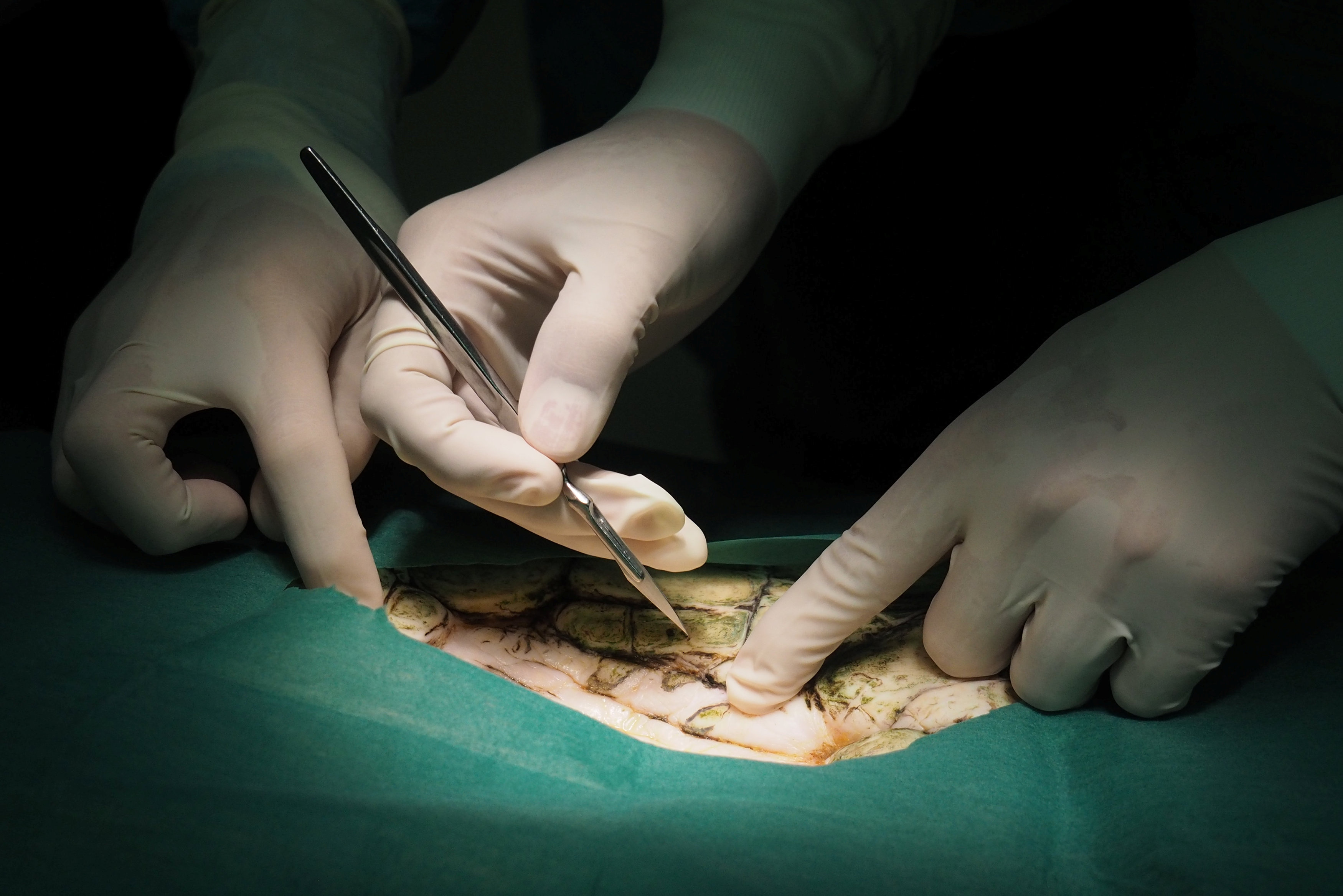Thai veterinarians operate on Omsin, a 25 year old femal green sea turtle, to remove coins from her stomach at the Faculty of Veterinary Science, Chulalongkorn University in Bangkok, Thailand March 6, 2017. The Faculty of Veterinary Science, Chulalongkorn University/Handout via REUTERS