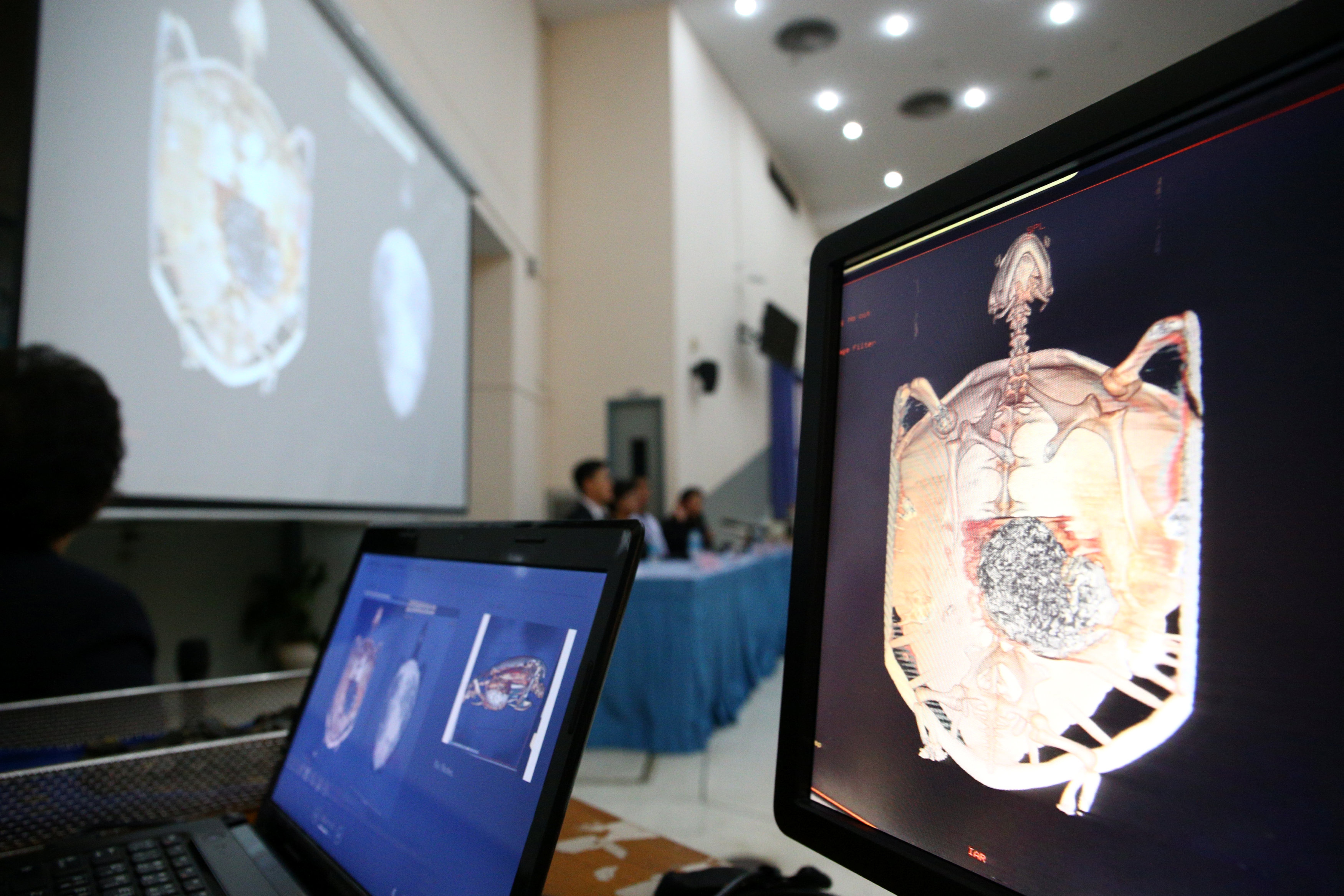 Screens show a CT scan of Omsin, a 25 year old femal green sea turtle, during a news conference at the Faculty of Veterinary Science, Chulalongkorn University in Bangkok, Thailand March 6, 2017. REUTERS/Athit Perawongmetha